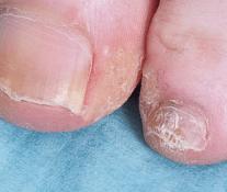 Ongle avant traitement laser onychomycose
