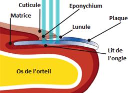 Schéma de l'orteil pour un traitement laser